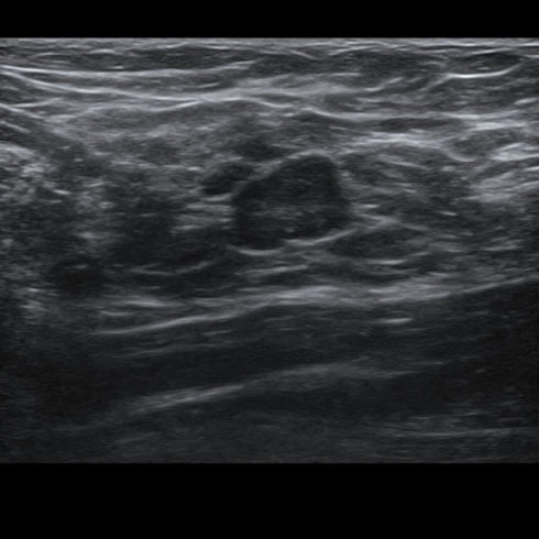 Alpinion Italia | ECube-15 | Breast in 2D