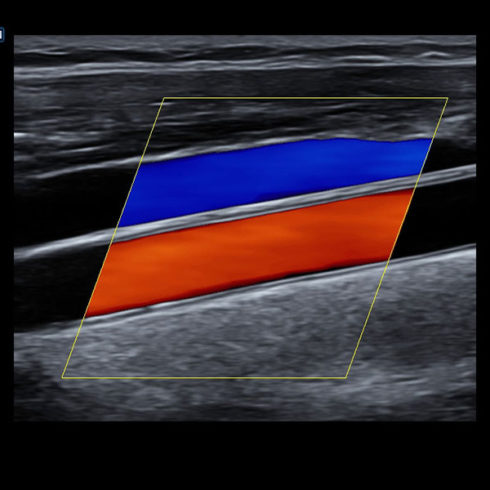 Alpinion Italia | ECube-15 | Carotid artery and jugular vein in color
