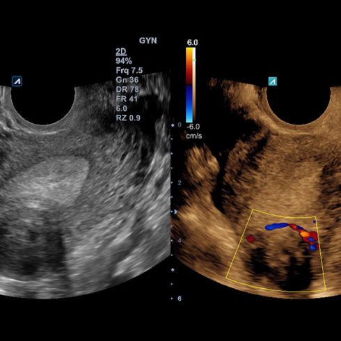 Alpinion Italia | ECube-15 | Uterine fibroid in dual live mode