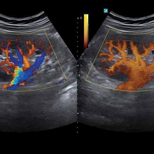 Alpinion Italia | ECube-15 | Kidney in CF and PD mode