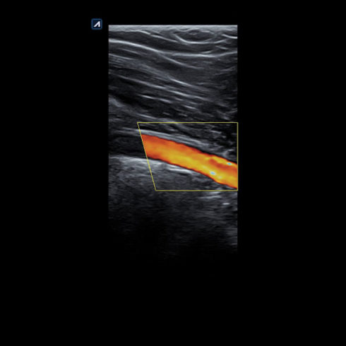 Alpinion Italia | ECube-15 | Popliteal artery in color