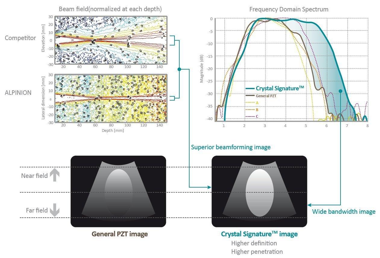 Tecnologia Alpinion sonde ecografi cristallo singolo