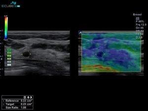 Alpinion ecube 15ex foto ecografia 5