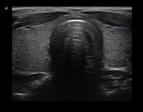 Tiroide in 2D