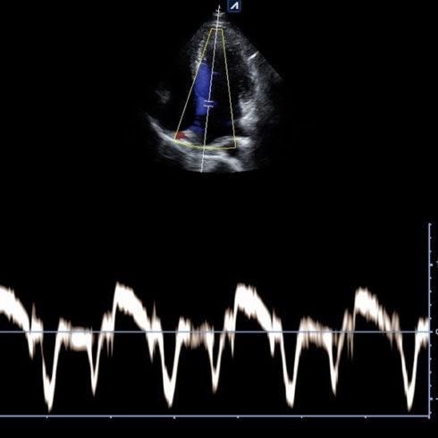 Alpinion Italia | Ecografi | Interventricular septum in tissue doppler imaging