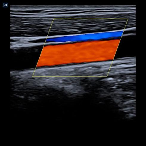 Alpinion Italia | Ecografi | Carotid artery and jugular vein in color flow mode