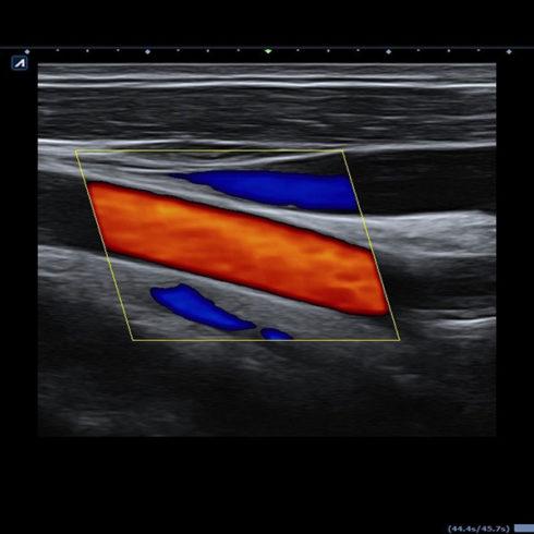 Alpinion Italia | Carotid artery and jugular vein in color flow mode