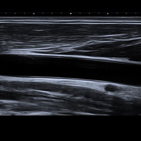 Alpinion Italia | Carotid artery in 2D mode