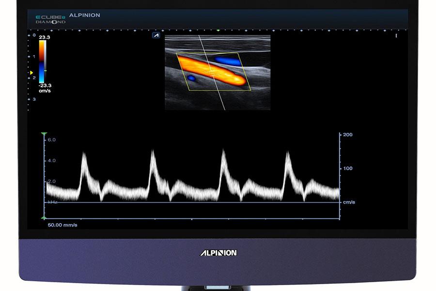 Alpinion Italia | Ecografi | Full Screen
