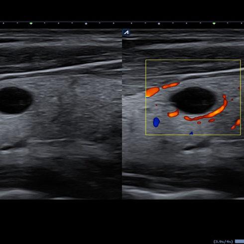 Alpinion Italia | Thyroid nodule in dual mode