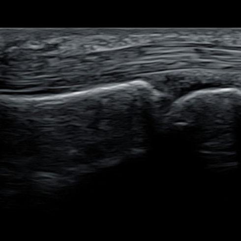 Alpinion Italia | MCP joint and its tendon with IO8-17T transducer