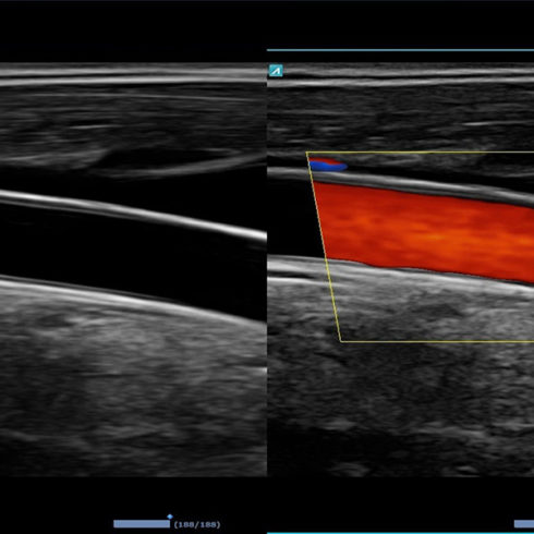 Alpinion Italia | Common xaroid artery in dual live mode