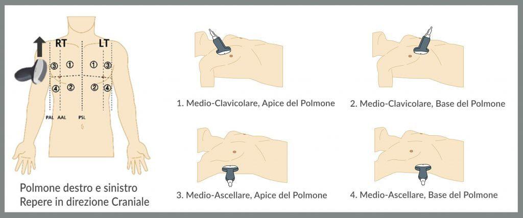 Alpinion Italia | Covid 19 metodo 8 zone