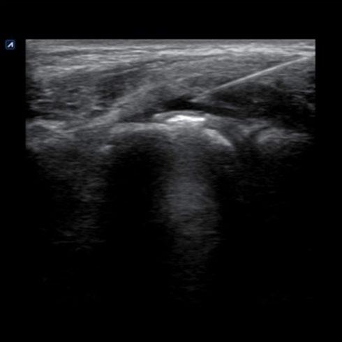 Alpinion Italia | Elbow joint injection