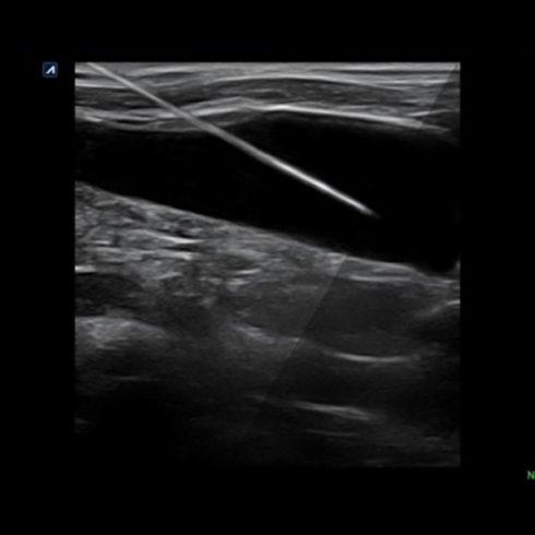 Alpinion Italia | Internal jugular vein injection with needle vision plus