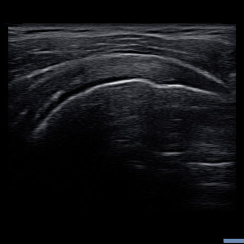 Alpinion Italia | Shoulder supraspinatus