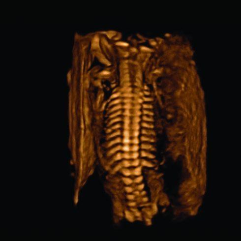Alpinion Italia | X Cube 90 | Colonna vertebrale fetale modalità 3D/4D